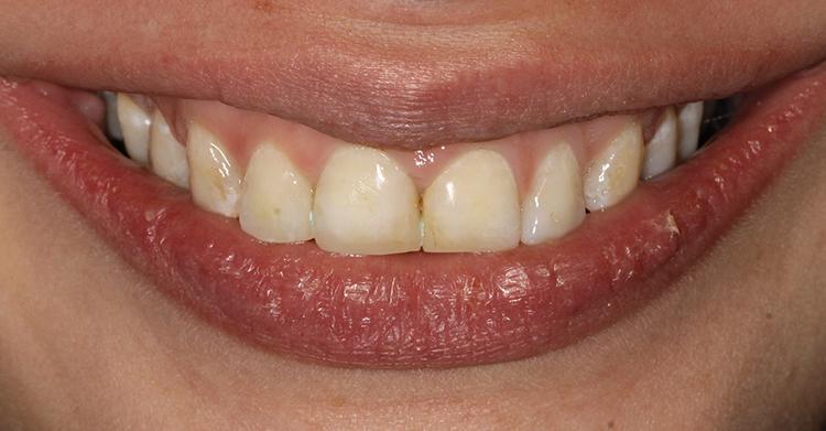 Blanqueamiento Dental Sonia-Valdes-Antes